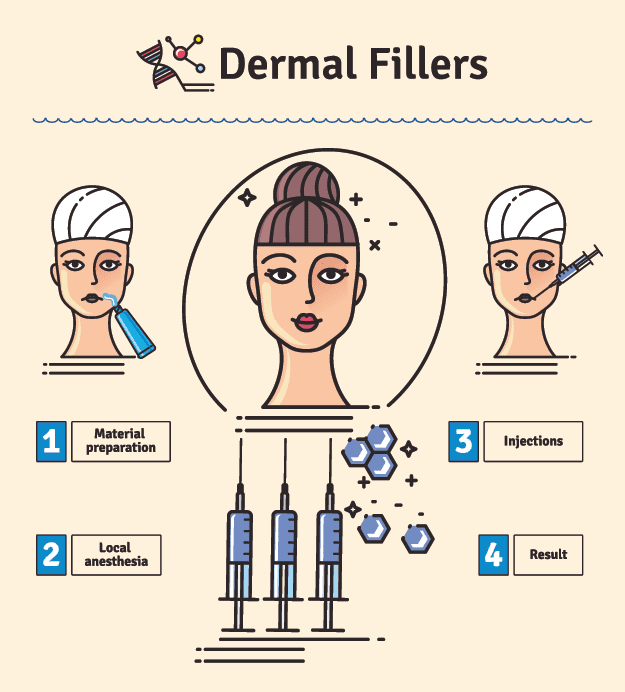 Dermal Filler Infographic video 5 tips to remove bags under eyes