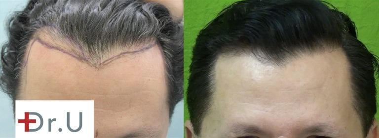"""Unhappy with his unusual hairline recession, this patient approached Dr. U for an FUE hairline restoration that would eliminate the sharpness of the """"M"""" shaped hairline."""