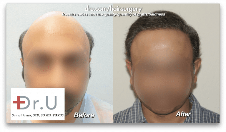 This patient experiencing severe baldness wanted a mature natural looking hairline, in addition to coverage on his top and crown. Using his Dr. UPunch Rotor to augment the patient's donor supply, Dr. U was able to extract 8,000 grafts from the patient's head and 4,000 from his beard over the course of 2 surgeries, 1 year apart.
