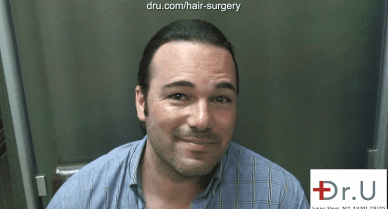 Beverly Hills patient shown two year after his hairline reconstruction using leg hair
