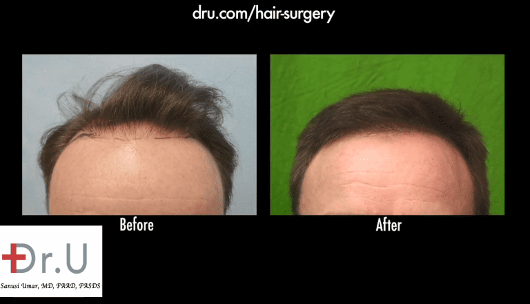 12 months after his FUE hairline restoration, the patient is extremely satisfied with his mature, neutral hairline.