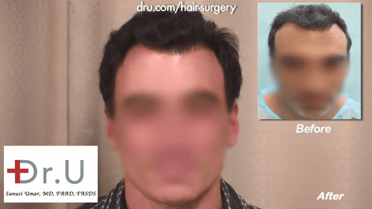 After previous strip surgeries resulted in unwanted attention to his toupee-like hairline, the patient came to Dr. U for a hairline correction. Using his Dr. UPunch Rotor to safely extract 3,000 grafts from the head and nape, Dr. U was able to construct a more natural looking hairline with softer temple points.