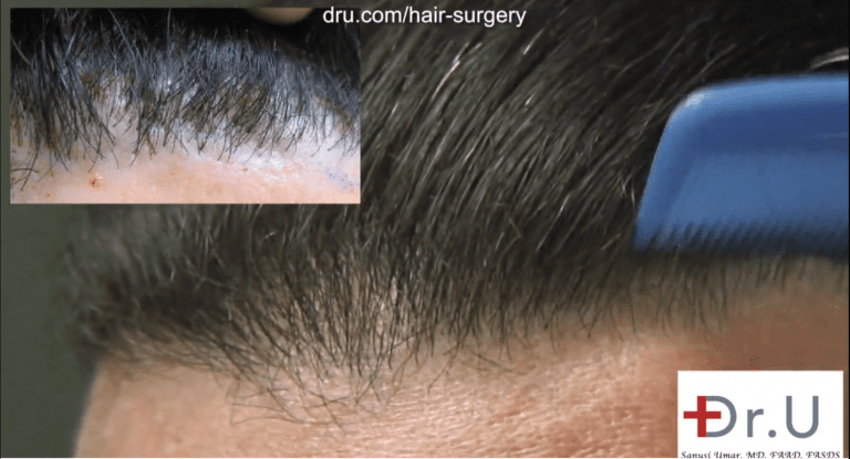Before and after photos showing a successful outcome to correct the patient's pluggy hairline using leg hair