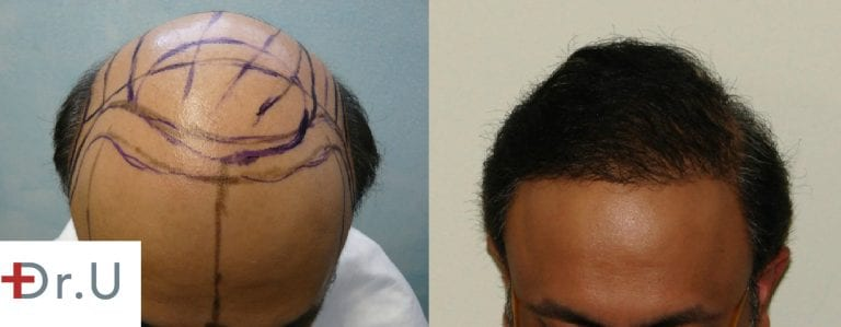 This severely bald, Norwood 7 patient was able to achieve comprehensive coverage for both the hairline and the crown due to the use of body hair grafts harvested with the Dr.UPunch intelligent