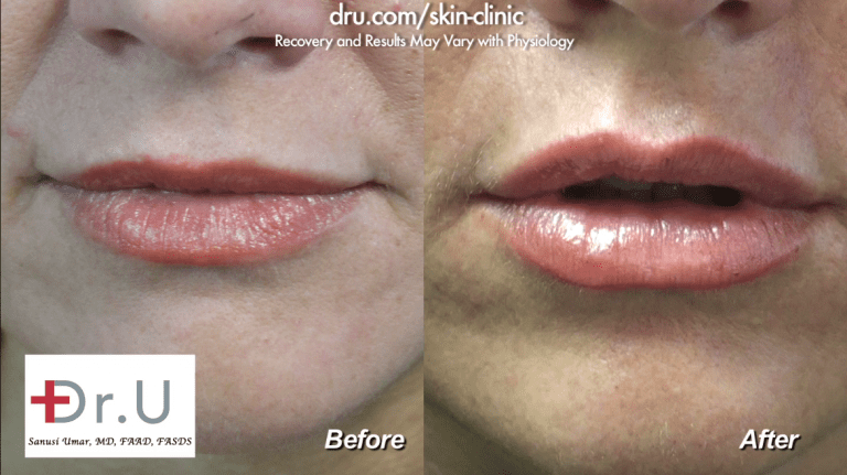 Before and after photos of a lip augmentation for the cupid's bow