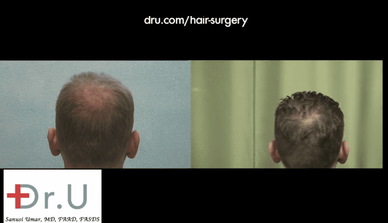 FUE for crown baldness is one of the areas targeted in this patient's procedure with Dr. U