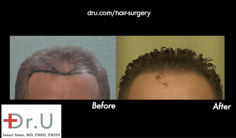 Hollywood, Los Angeles patient before and after his FUE hairline reconstruction with 3500 grafts