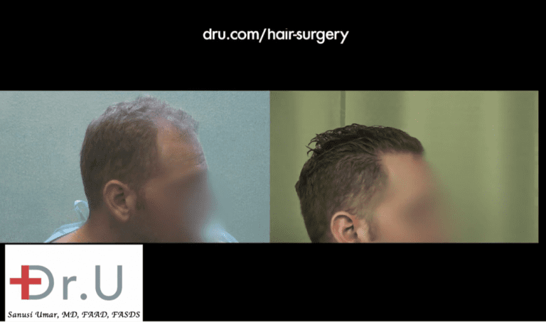 A hair restoration on your 20s may involve the hairline, temples and crown as this patient shows in these before and after images