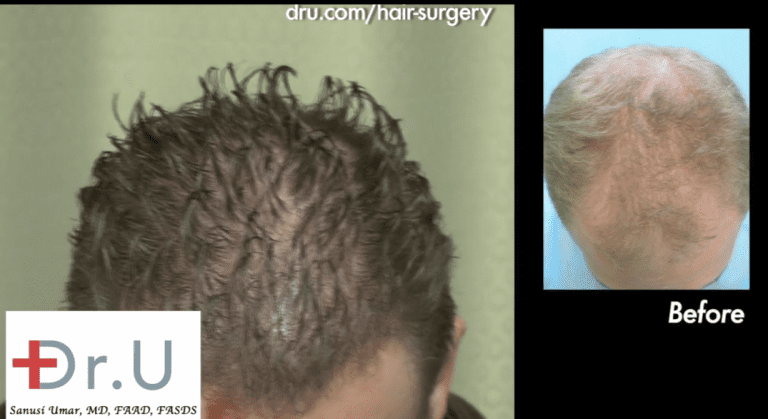 Patient shown before and after his FUE hair transplant to reverse hair thinning