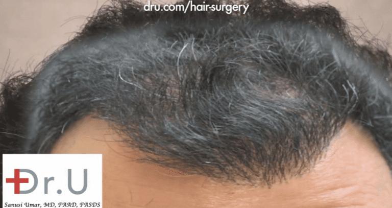 Palos Verdes, Los Angeles patient before his repair for an asymmetrical hairline