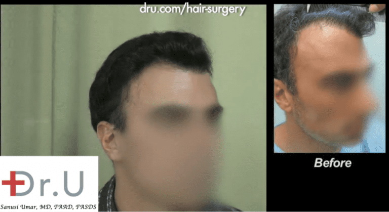 Palos Verdes patient showing the results of his hairline revision surgery which also included improvements in his temple area