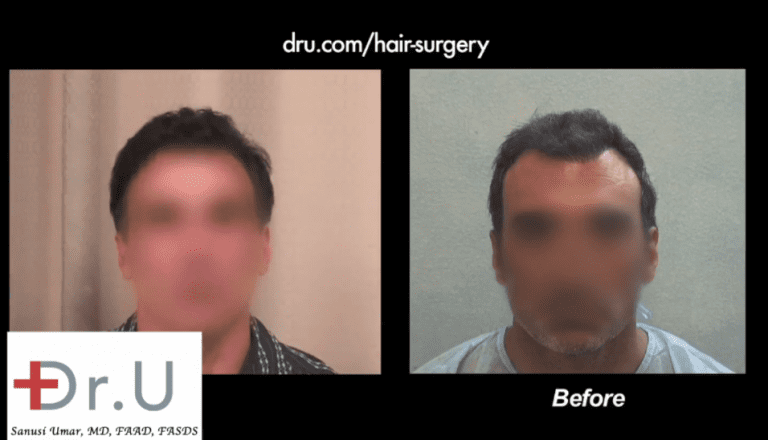 asymmetrical pluggy hairline repair, fix a botched hairline, how to fix a crooked hairline, hairline repair with FUE, hairline revision surgery