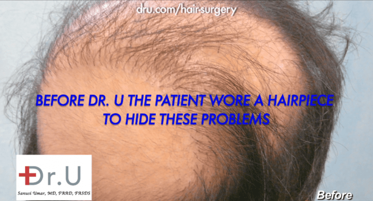 No hair growth yield, oddly placed grafts caused this patient to wear a toupee for 14 years