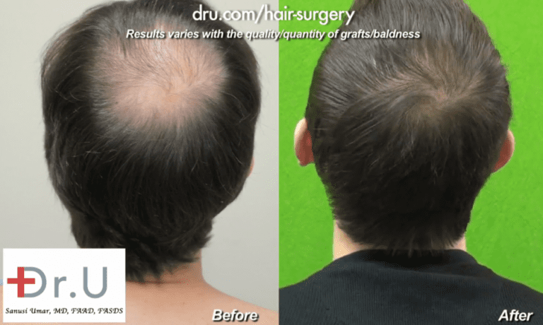 Hollywood, Los Angeles patient shown from the side before and after his celebrity hair restoration