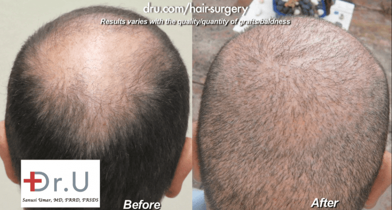 Patient who wanted to repair strip surgery mistakes showed continued baldness in the crown before his procedure with Dr. Umar. This area was successfully filled in using an expanded donor pool