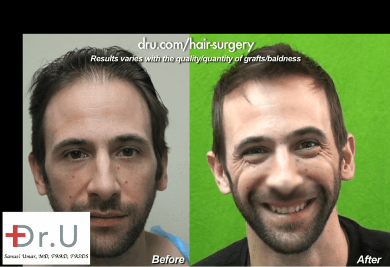 Hair restoration can be a transformational course of action when it comes to image management for celebrities