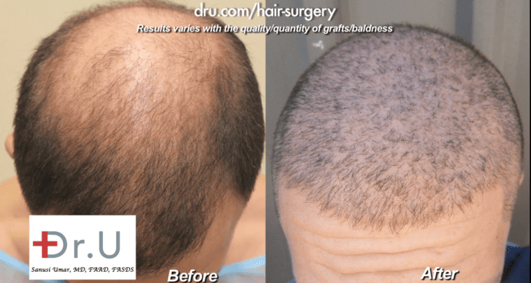 Sydney, Australia patient showed no growth after strip surgery but overcame this issue with 13,000 grafts of head and body hair