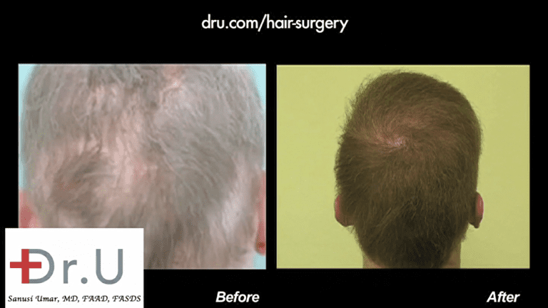 The back of the patient's head now has normal looking coverage thanks to body hair grafts that were well inserted to recreate the whorl and normal growth patterns on the back of the head