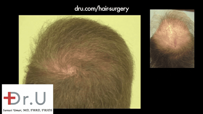 Close up view of crown whorl and new coverage which now masks the scalp reduction scar