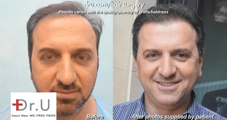 Patient's Hair Transplant With 14,000 Grafts - Before and After