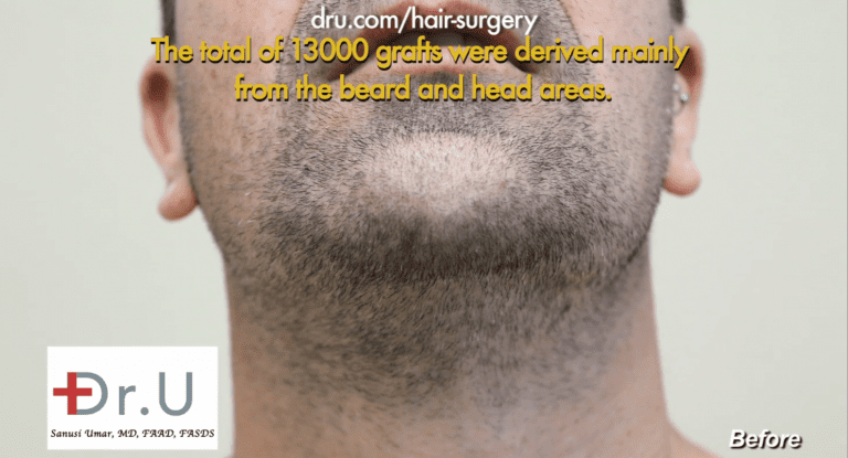 Patient's beard area before his surgery with Dr. Umar