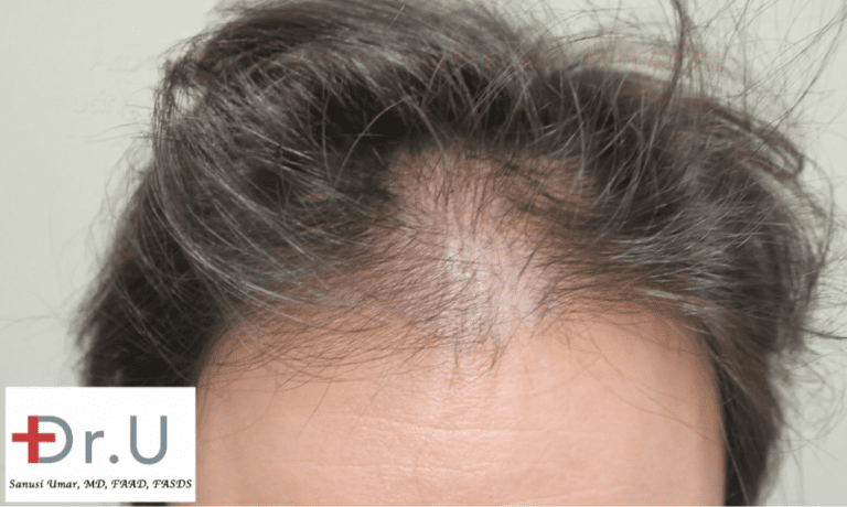 An FUE procedure at Dr. U's clinic was chosen to recreate a hairline and temples in celebrity