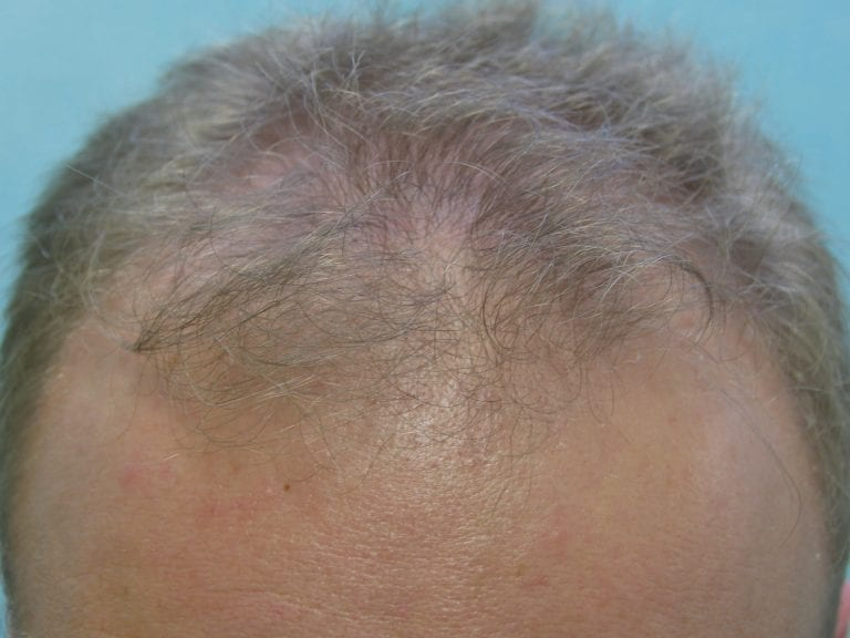 Dr. Umar's patient before his procedure to reverse hair thinning