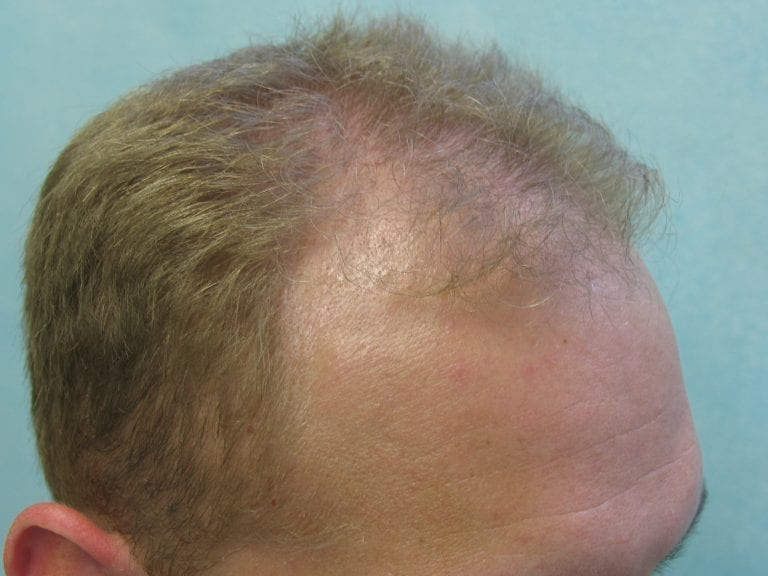 Hollywood, Los Angeles patient before FUE hairline reconstruction