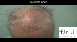 This patient required a body hair transplant for impossible repair due to the aftermath of procedures like flap surgery for hair restoration.