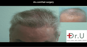 Dr. Umar used abdomen, beard and chest hair to repair a flap surgery hairline scar and achieve a natural-looking coverage for the top of this patient's head.