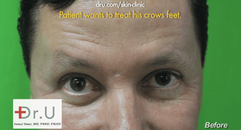 Patient wants to use a new Botox alternative to treat the deepened crows feet lines around his eyes