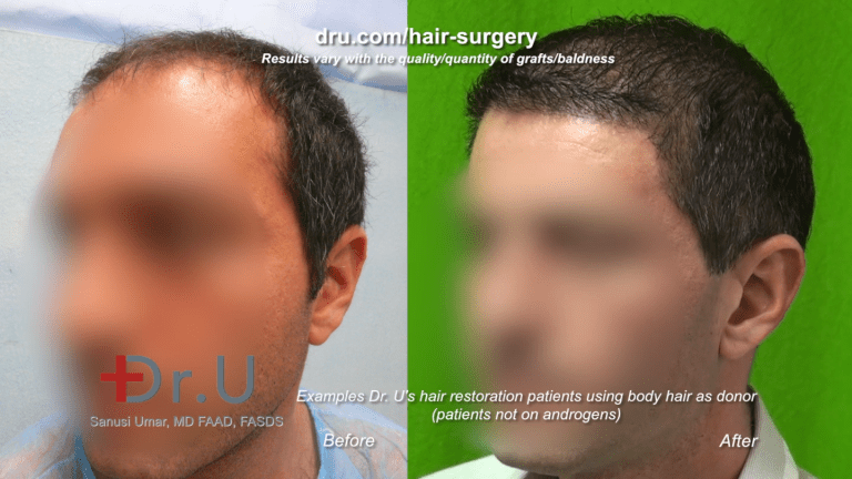 This Los Angeles patient benefited from a body hair to head restoration with Dr. Umar.