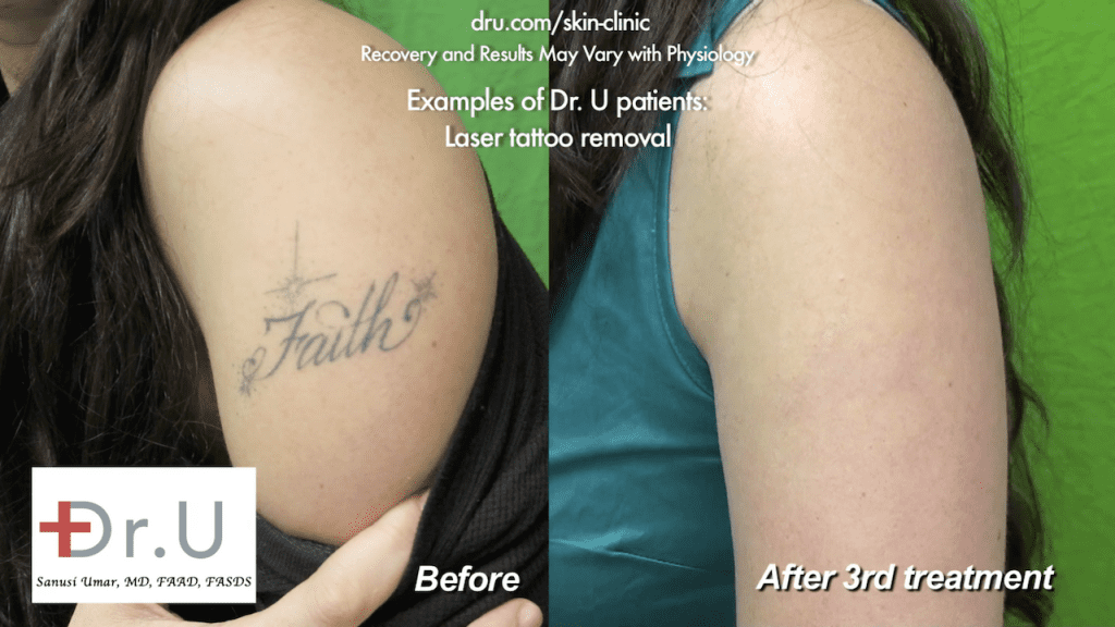 After three sessions of tattoo laser removal with Dr. Umar in Los Angeles, the patient happily shows off her ink-less arm.