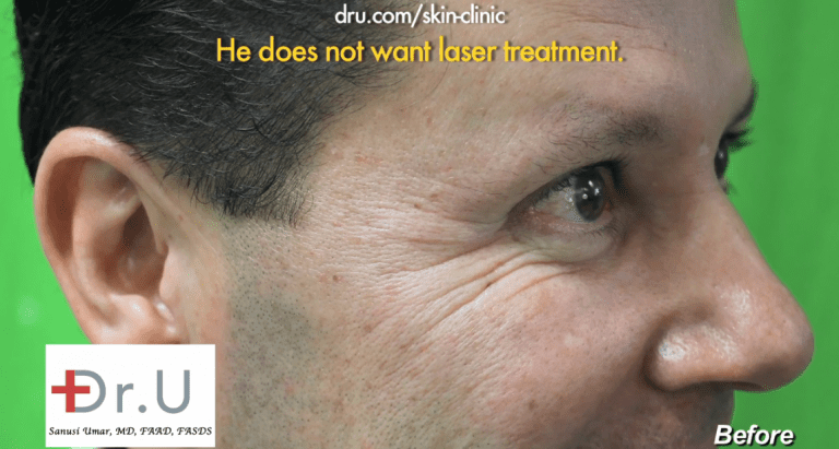 Patient before using Belotero filler for crows feet wrinkles