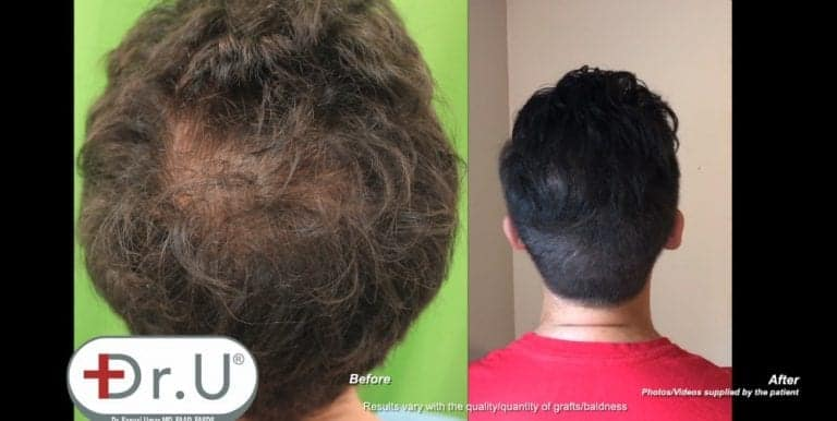 Patient's vertex hair transplant results show a natural looking fuller crown, with no obvious signs of hair loss