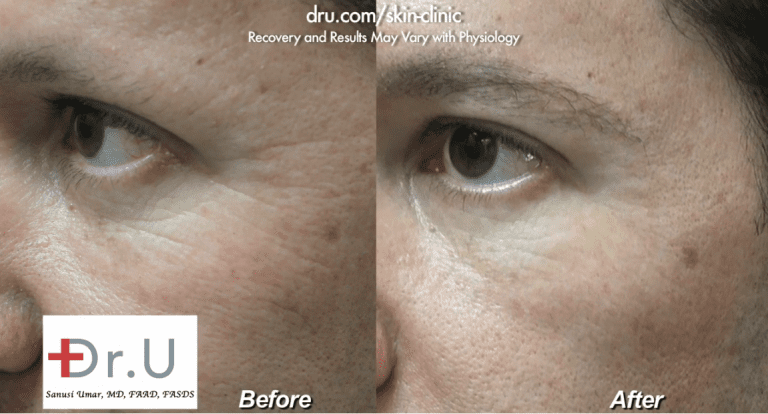 Belotero filler for crows feet produced a natural-looking reduction in the depth and number of fine lines at the corner of his eyes