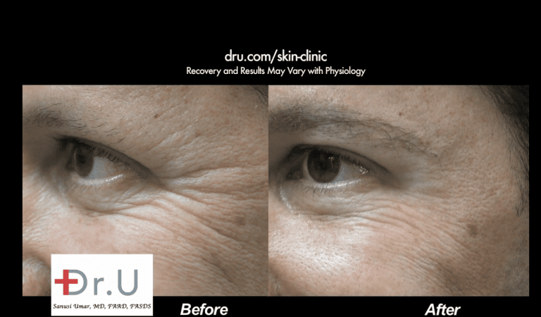 Patient's Belotero filler before and after pictures showing a drastic reduction in the depth of his crows feet wrinkles