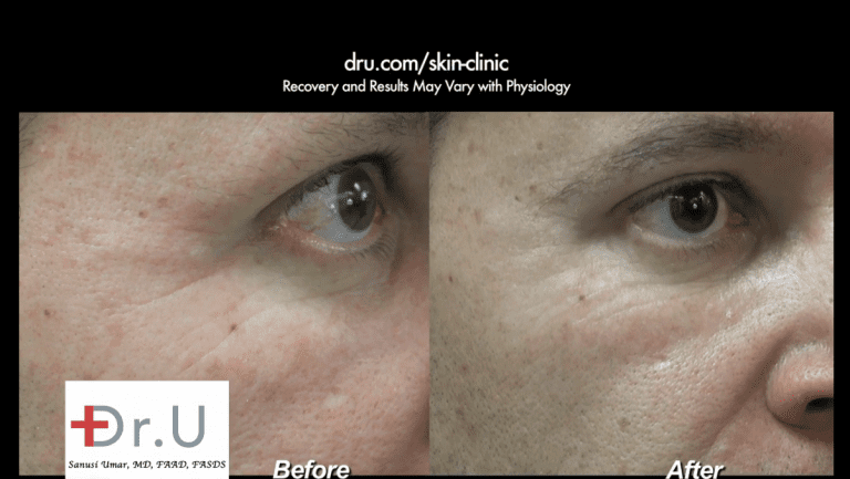 Venice Beach patient before and after his treatment with Belotero to remove crows feet