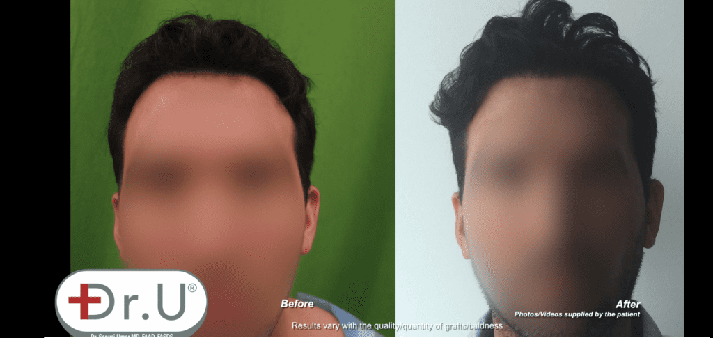Dr.UGraft Hair Transplant Scar Cover Up For Venice Beach, Los Angeles Patient