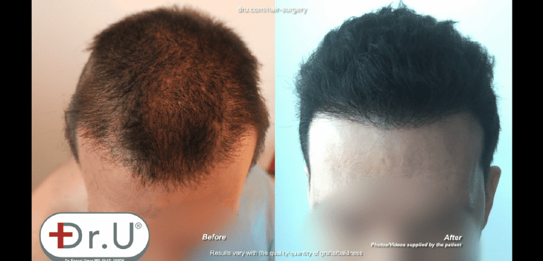 Patient from Venice Beach, Los Angeles now has normal looking hair growth patterns on the top of his head
