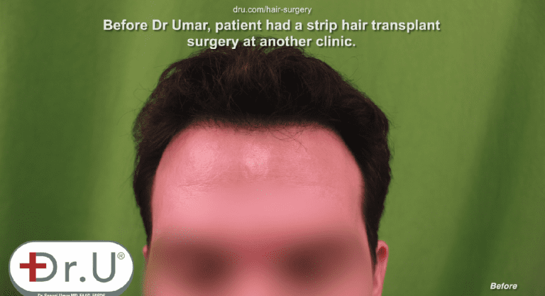 Venice Beach patient is unhappy with his receded hairline and temples
