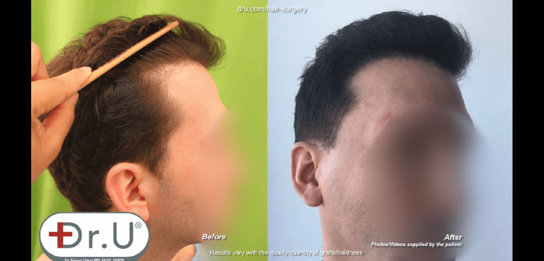 Dr. Umar was able to undo hair transplant mistakes from the patient's strip surgery to give him a more natural looking hairline and temples