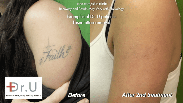 This before and after image shows the results of two sessions of tattoo removal with laser. A faint outline can still be seen, which was addressed in a follow-up session
