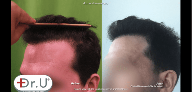 Patient no longer has plugginess along his hairline thanks to Dr. Umar
