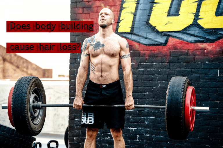 Many people often note that body builders tend to be bald or balding. This prompts many to wonder if there is a connection between testosterone and hair loss.