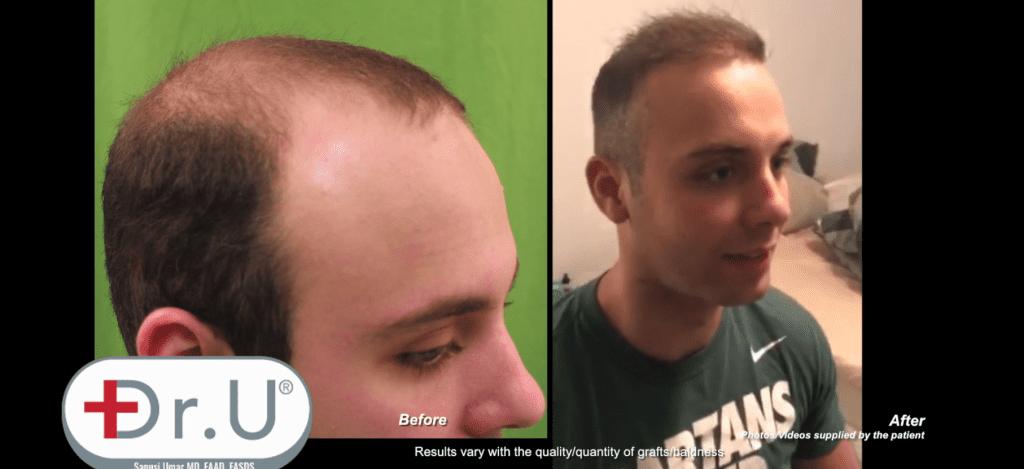 Manhattan Beach Patient Undergoes Dr.UGraft Hair Transplant at Age 23