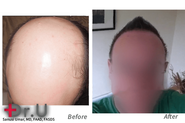 The primary FUE hair transplant donor area used on this Norwood 7 patient was the beard region which helped him conquer his severe baldness.