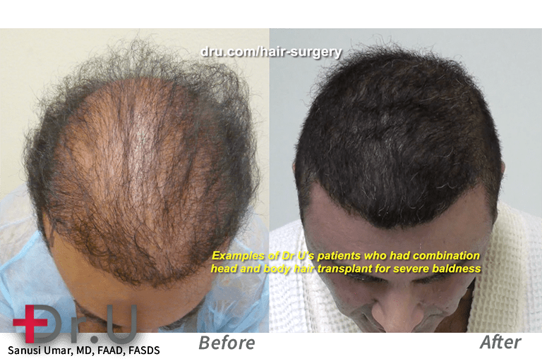 This patient lacked sufficient head donor grafts for sufficient coverage from a hair transplant. Dr. Umar was able to harvest additional grafts from body areas in order to meet this patient's higher graft count.