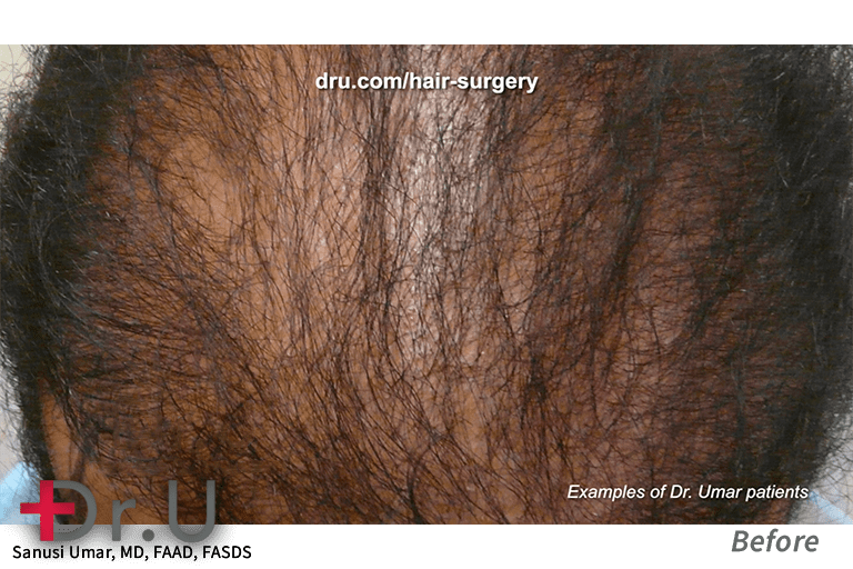 The patient above came to Dr. U with sparse growth from a previous procedure. Other clinics struggle to provide the necessary grafts for dense results. To avoid these results, Dr. Umar augments donor supply with body hair grafts using the Intelligent Punch (Dr.UPunch i).