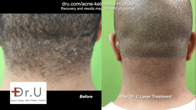 The East Los Angeles patient shows off his new, AKN-free back hairline. No longer self-conscious of the bumps on head scalp, he is able to wear his hair as short as he likes without fear of exposing the hard simple-like bumps previously on his nape.*